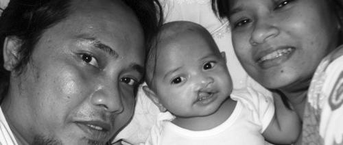 Tentang Rael: Labioplasty, persiapan operasi celah bibir sumbing. Part 1.